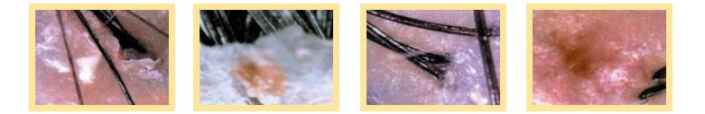 頭皮問題 (781×127)